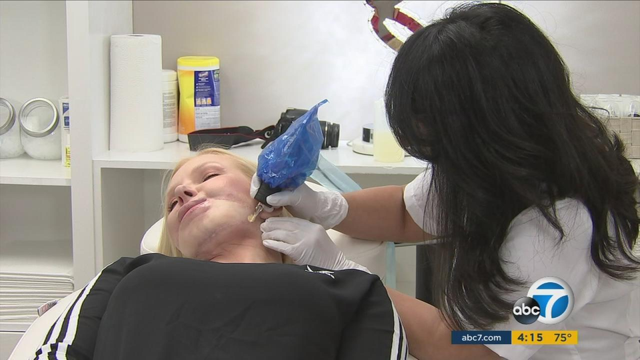 Beverly Hills specialist Basma Hameed demonstrates her technique to help hide scars on patient Anna Wuzter.