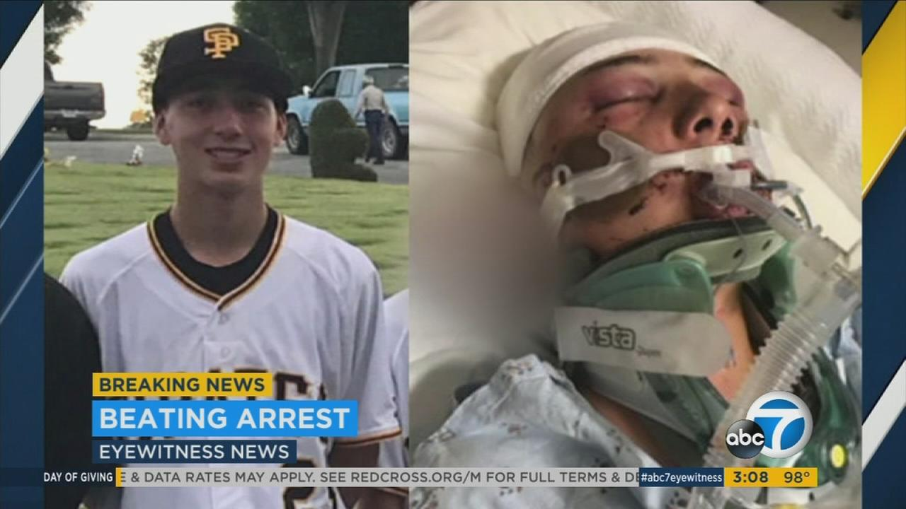 Evan Jimenez, 15, was severely beaten as he was walking home in San Pedro on March 30, 2017.