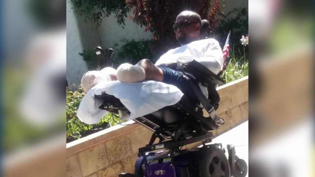 Bishop Larry Jones is shown in a wheelchair with his hands and ankles wrapped with gauze after undergoing surgery to have those appendages removed.