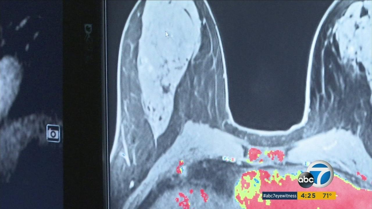 Hoag hospital program makes early breast cancer detection its mission