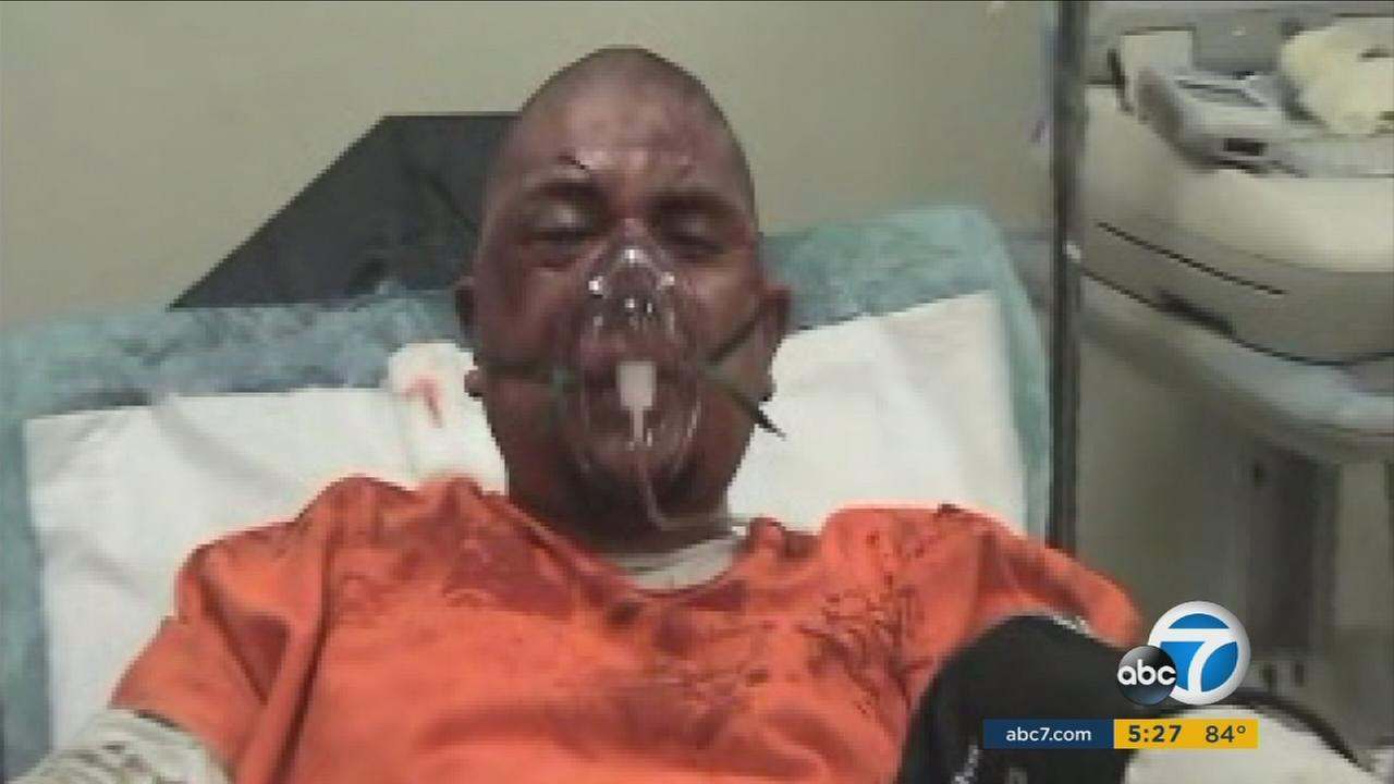 Newly unsealed videos show a violent jail cell extraction and injured inmates after the incident in the Los Angeles County Mens Central Jail.