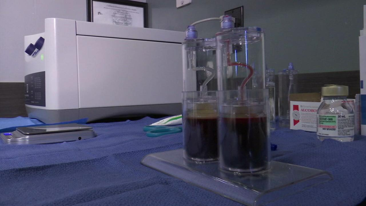 Vials of a patients own blood are shown during an Alpha Mac treatment.