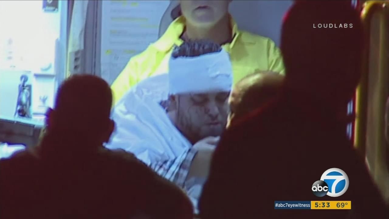 An El Sereno man who was attacked and had his pet pug stolen Tuesday night is shown inside an ambulance being treated for his injuries.