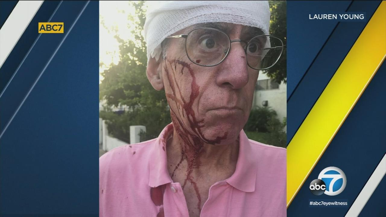 Paul Young is shown in a photo taken by his daughter Lauren after he was treated for injuries he sustained in a random attack on a Los Feliz street in July.