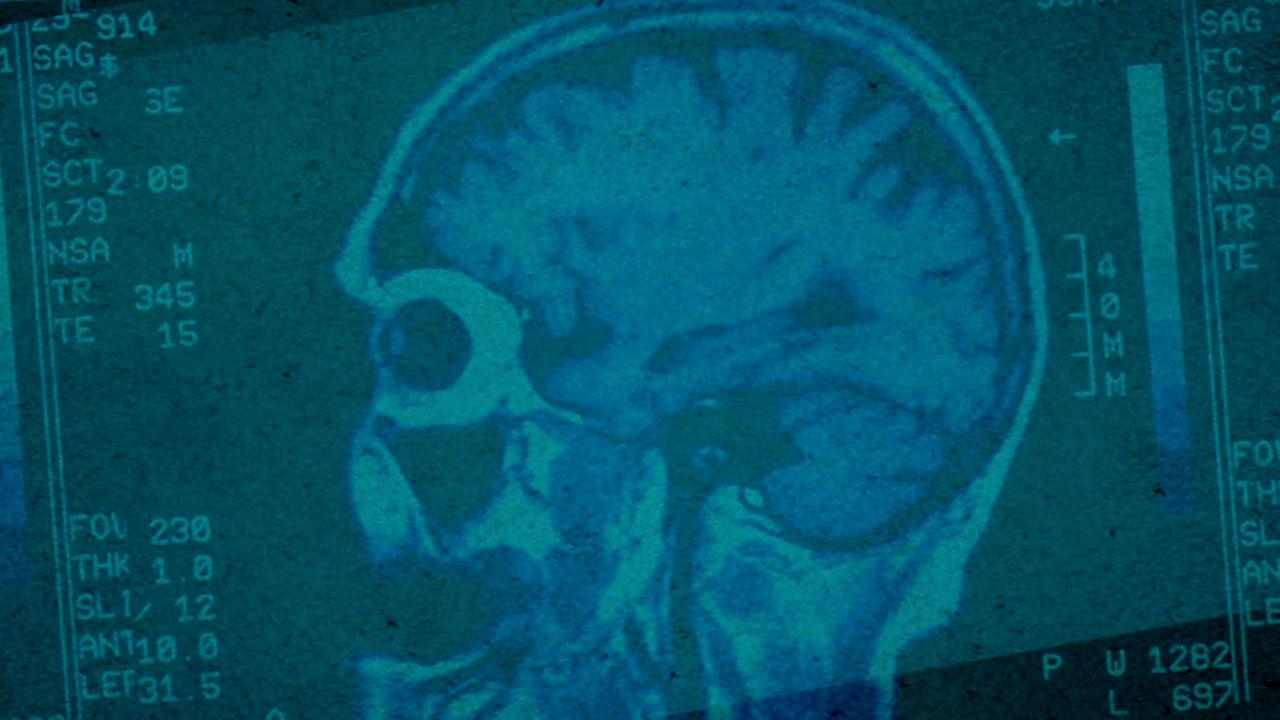 A brain scan image is shown in a photo.
