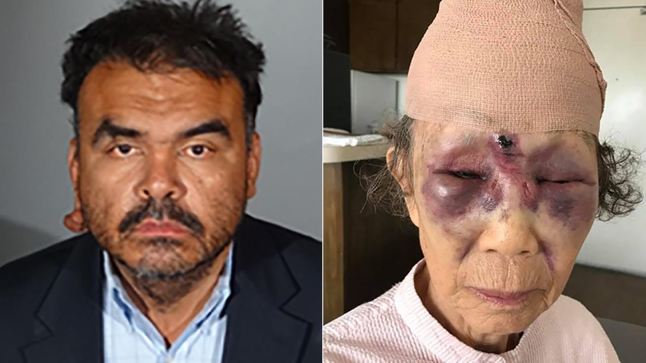 Richard Rene Colomo of Bell Gardens, left, is the suspect in the beating of an elderly woman in Koreatown.