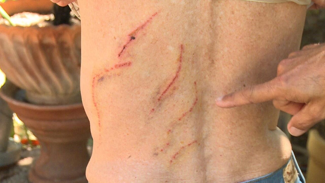 Bear attack victim Emily Miles shows the scratches on her back Wednesday, Sept. 24, 2014.