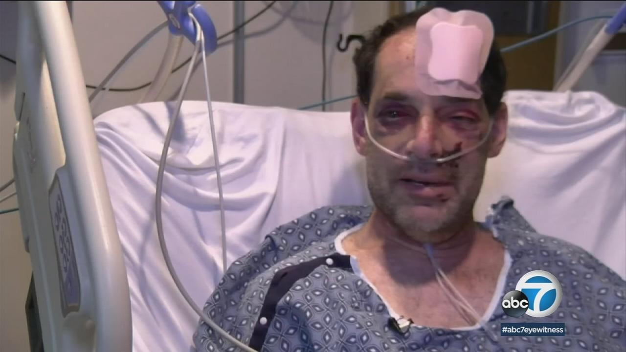 Paul Hanks went missing for days in Joshua Tree National Park after fracturing his leg, forehead and pelvic area.
