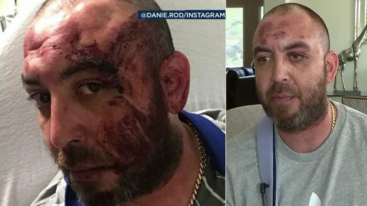 Franco Rodriguez, of Norco, is shown in photos after he said he was beaten by Dodger Stadium security on Opening Day.