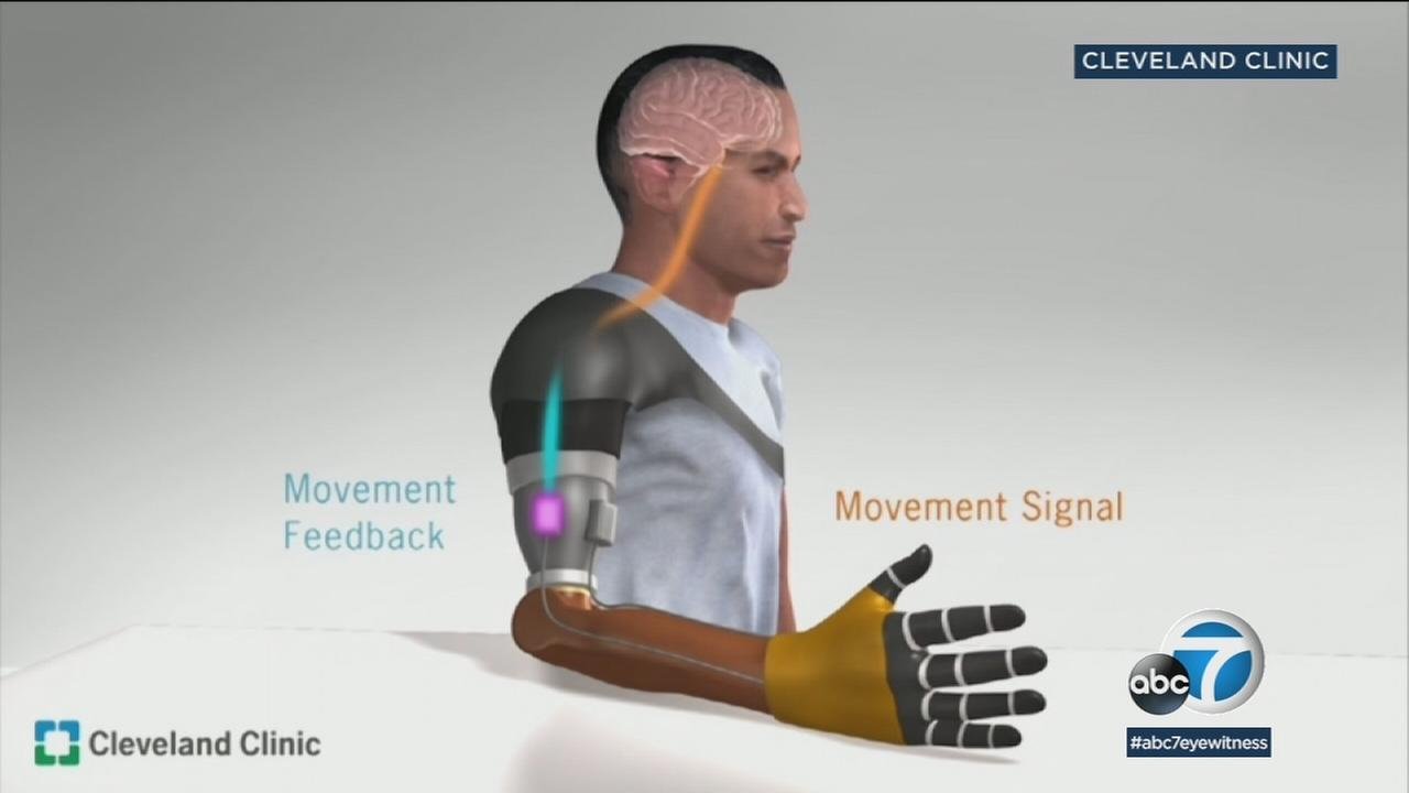 A new type of bionic prosthesis that restores the sense of touch and movement sensation for upper-limb amputees.