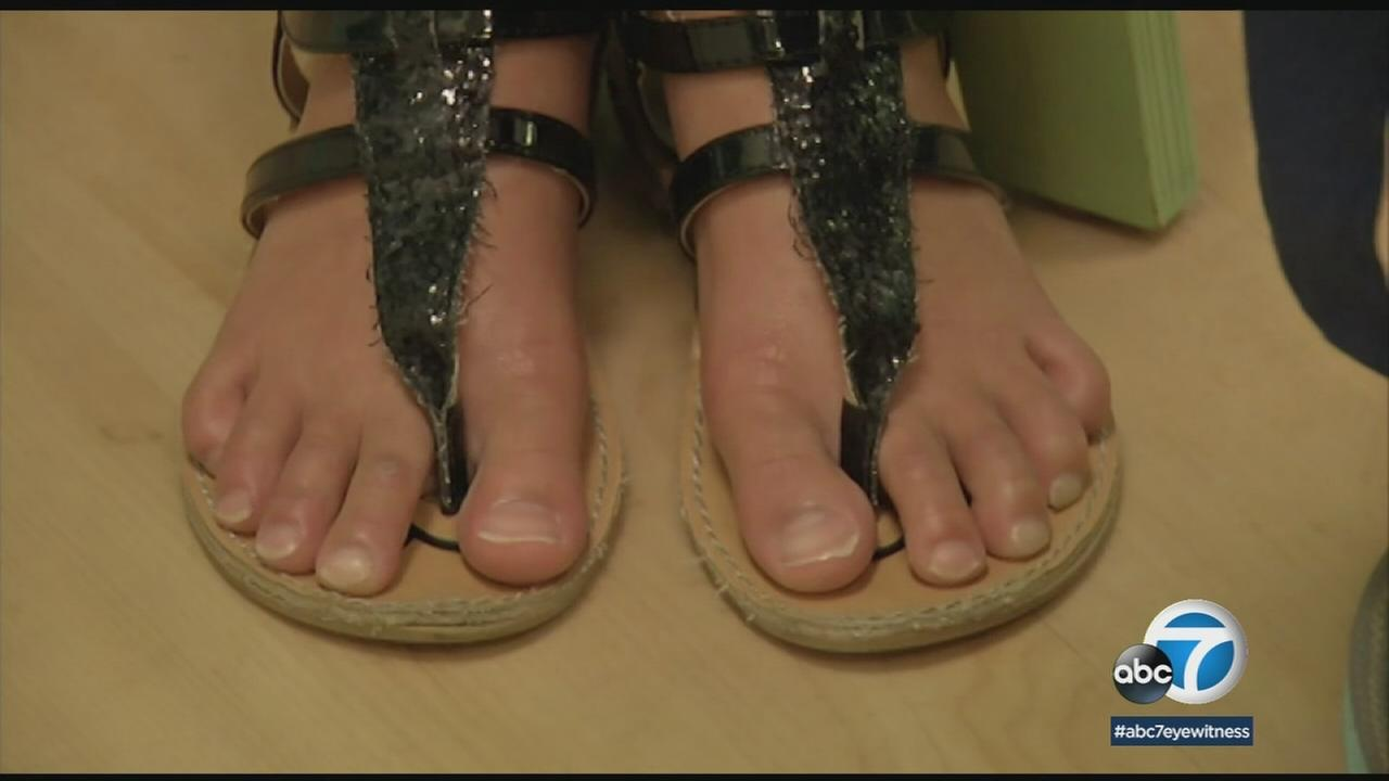 A pair of feet in sandals is shown in a photo.