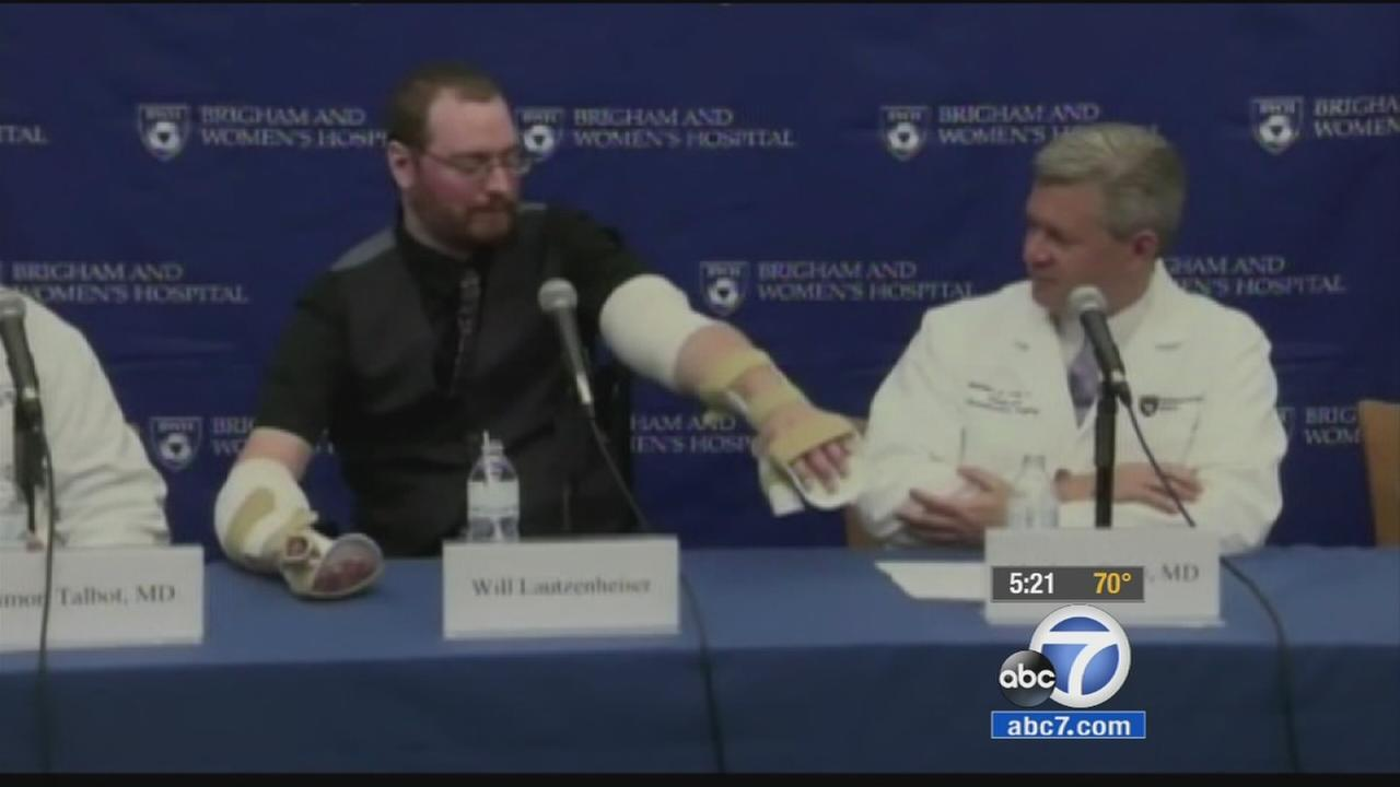 Will Lautzenheiser shows off his double arm transplant at a news conference.
