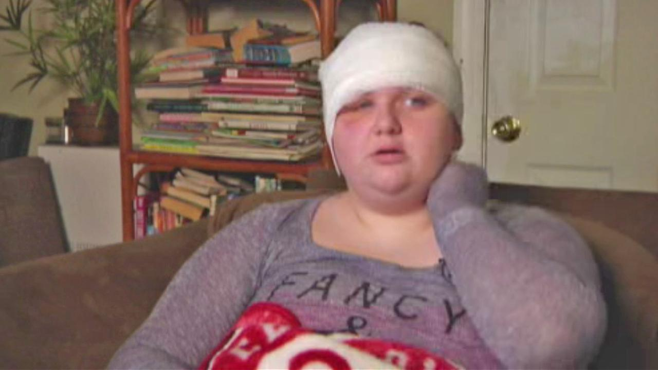 Leah Reeder is seen after she was attacked by a bear in Florida in December 2014.