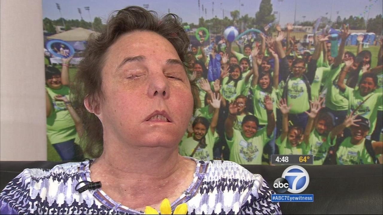 A woman donated her mothers facial tissue to a stranger who had been severely beaten and burned, and the pair are sharing their story at Cal State Fullerton.