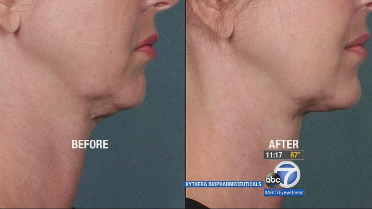 Dr. Alexander Rivkin is in the business of making his patients beautiful by using non-surgical cosmetic treatments, and he now has a new way to get rid of a double chin.