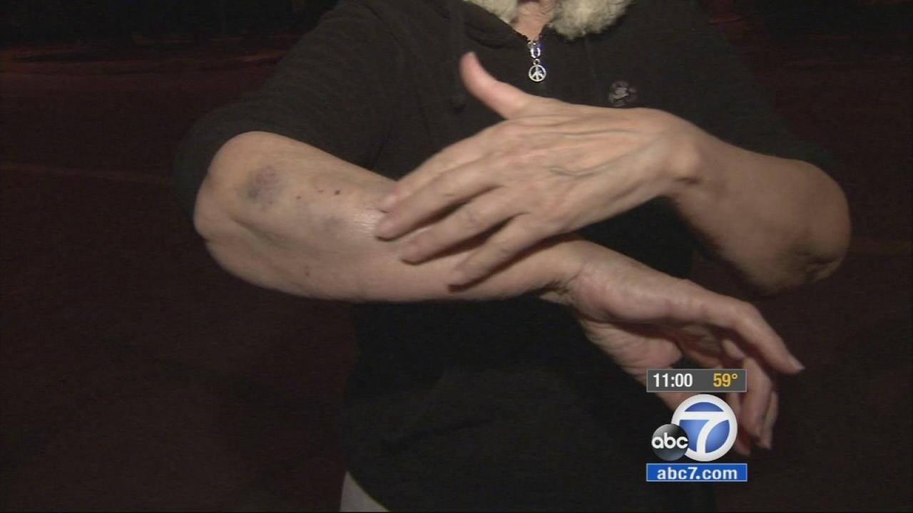 An elderly woman shows her bruises and cuts that she suffered after being attacked by a would-be robber by the Rose Bowl in Pasadena.