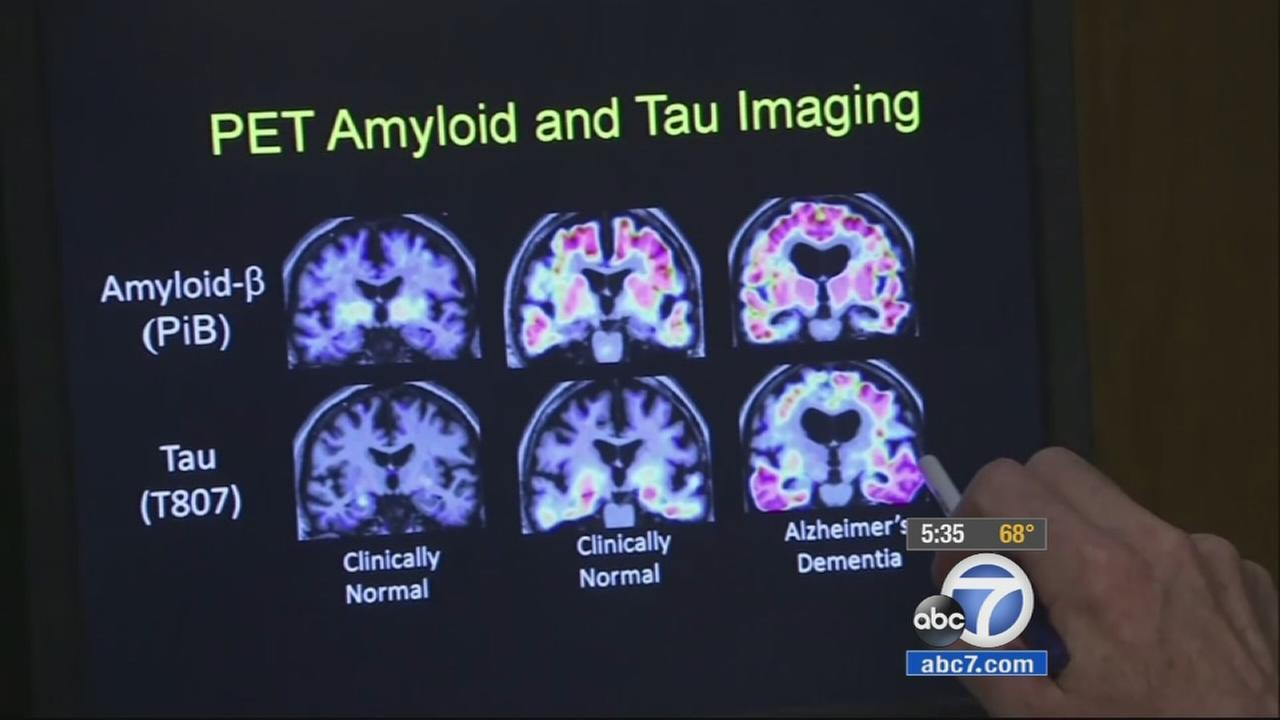 A PET scan shows the levels of amyloid and tau build-up in the brain.
