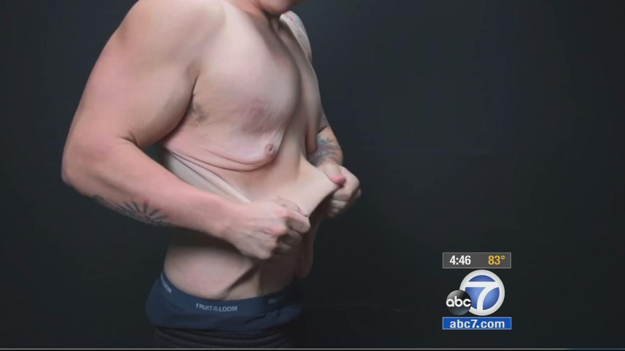 A San Diego man offers the pros and cons of going from obese to beast after losing 170 pounds.
