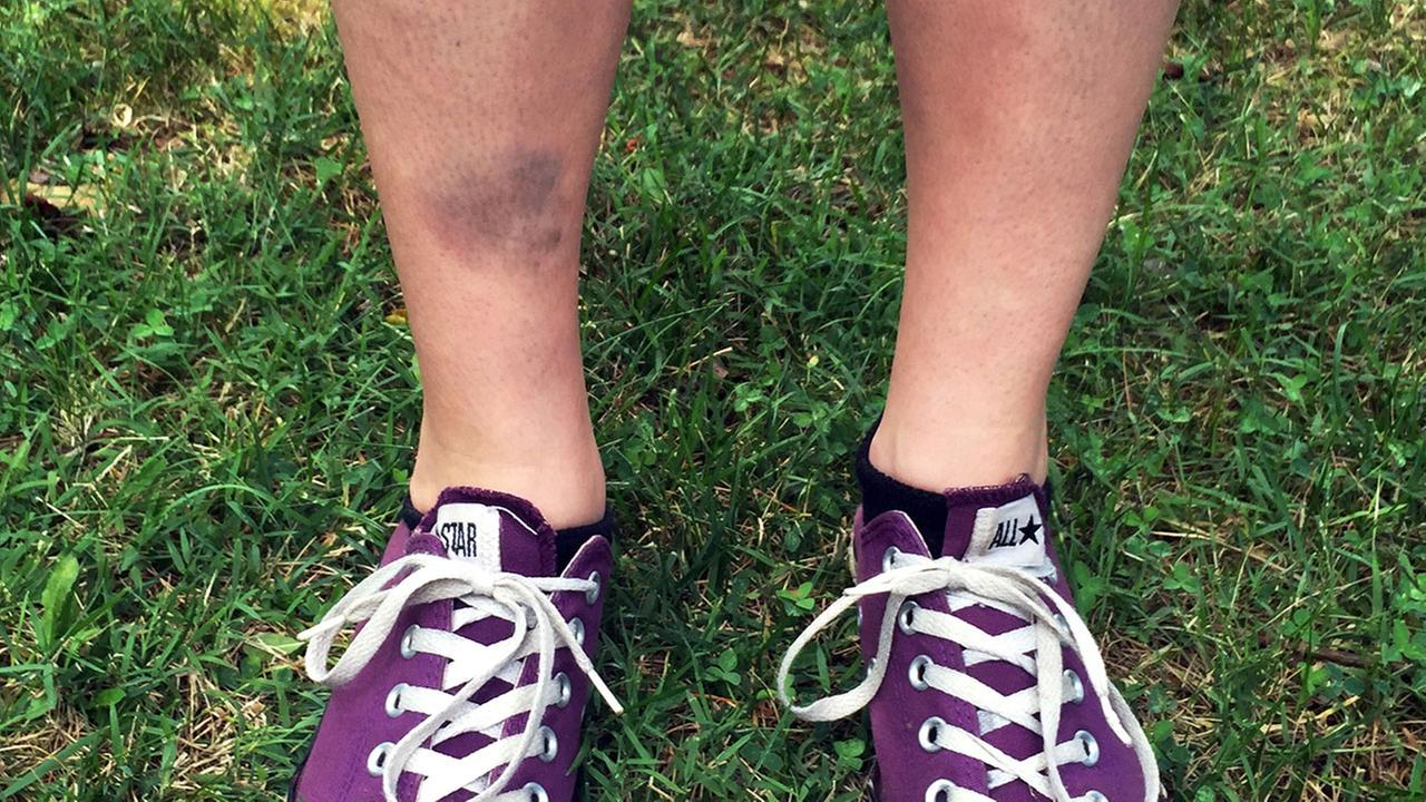This photo shows the bruised shin of Lindsay Plunkett, 23, a waitress in Asheville, N.C., after she tripped over a cinder block while playing Pokemon Go (Justin Harrison via AP)