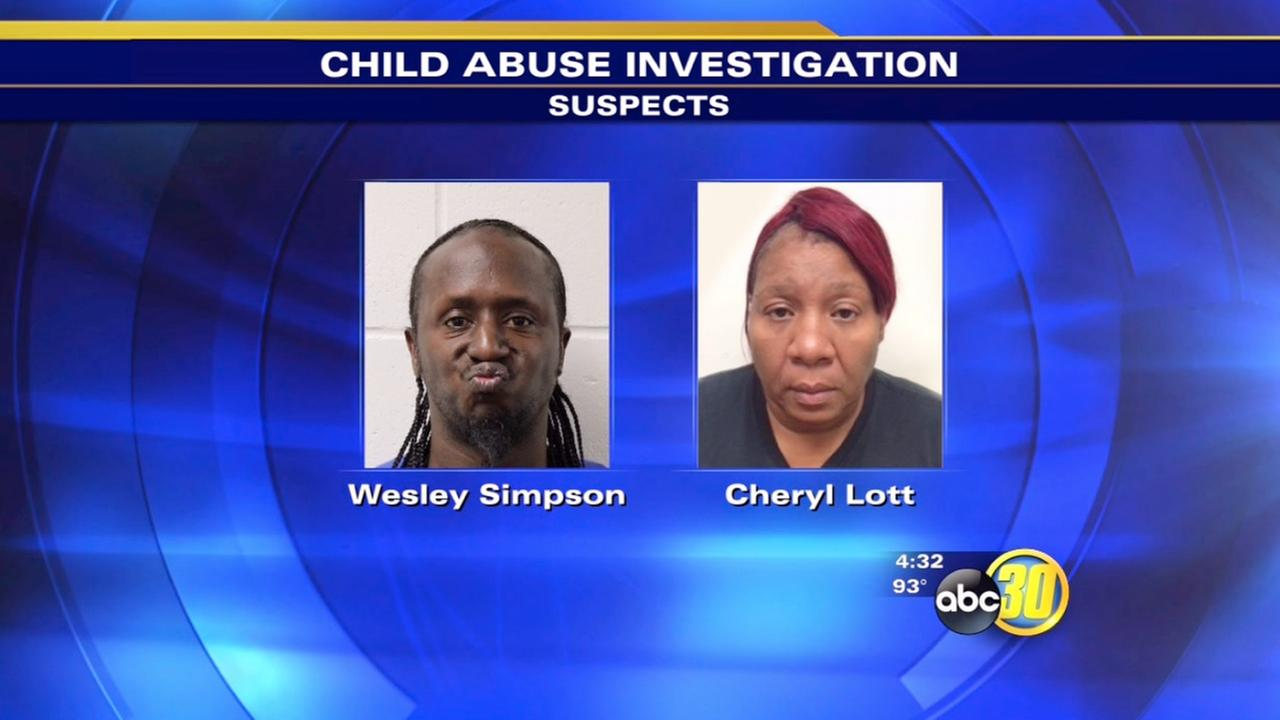 Visalia couple jailed on child abuse charges