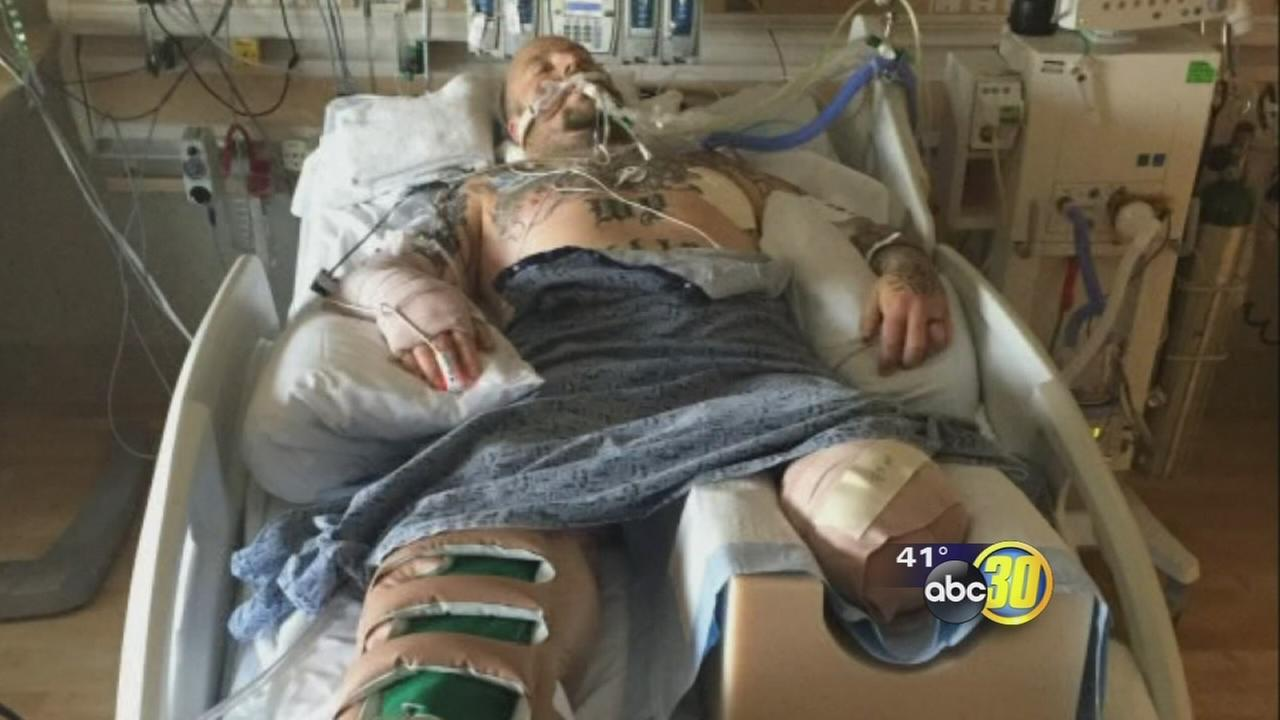 Fresno man loses his ability to work and is fighting to get his life back