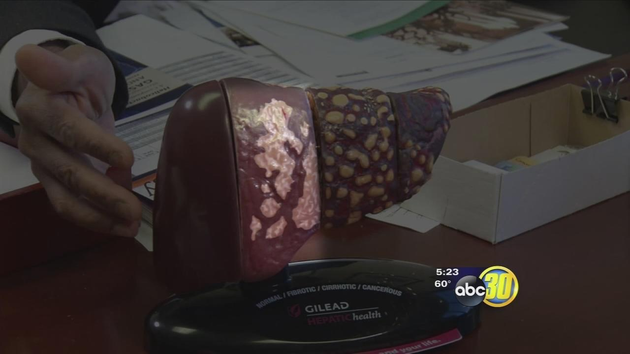 Health Watch: FibroScan Measures Liver Disease