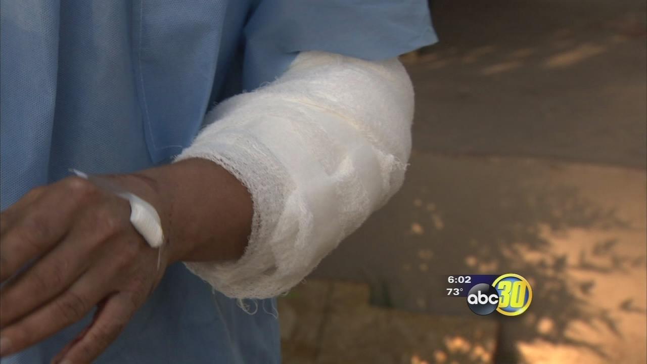 Man bitten by Fresno Police K-9 files lawsuits