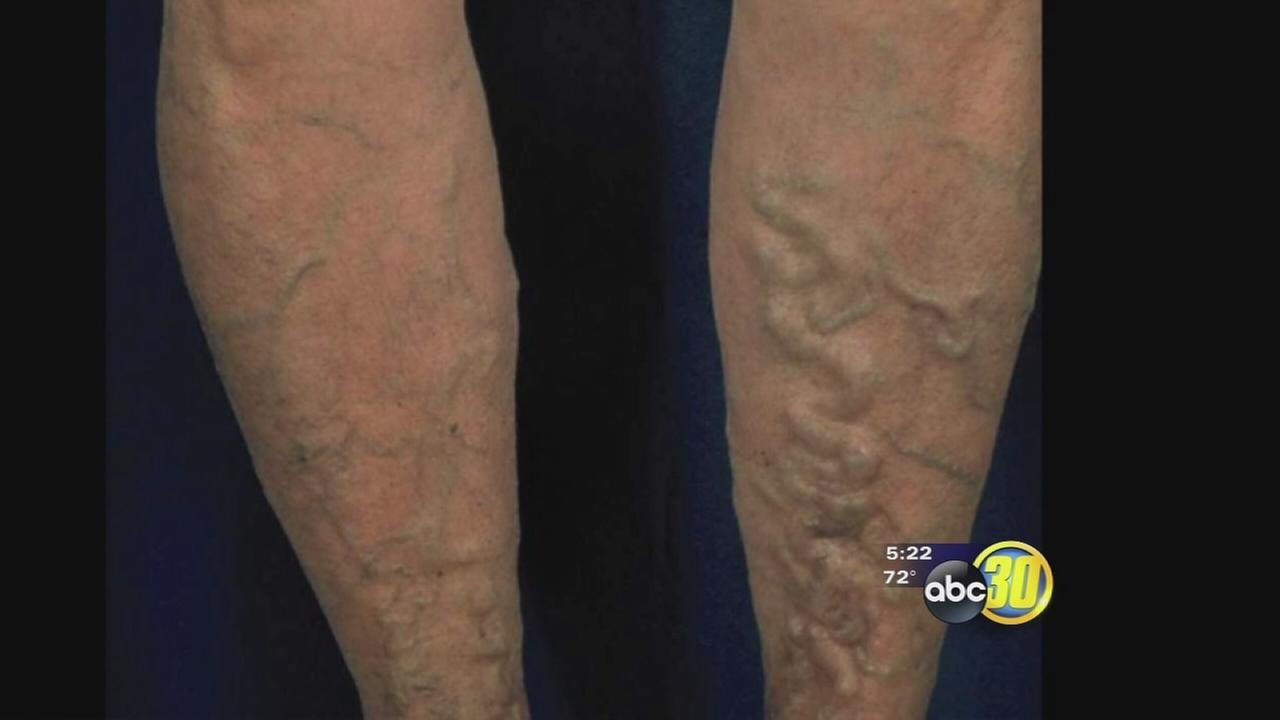 he New Face of Varicose Veins