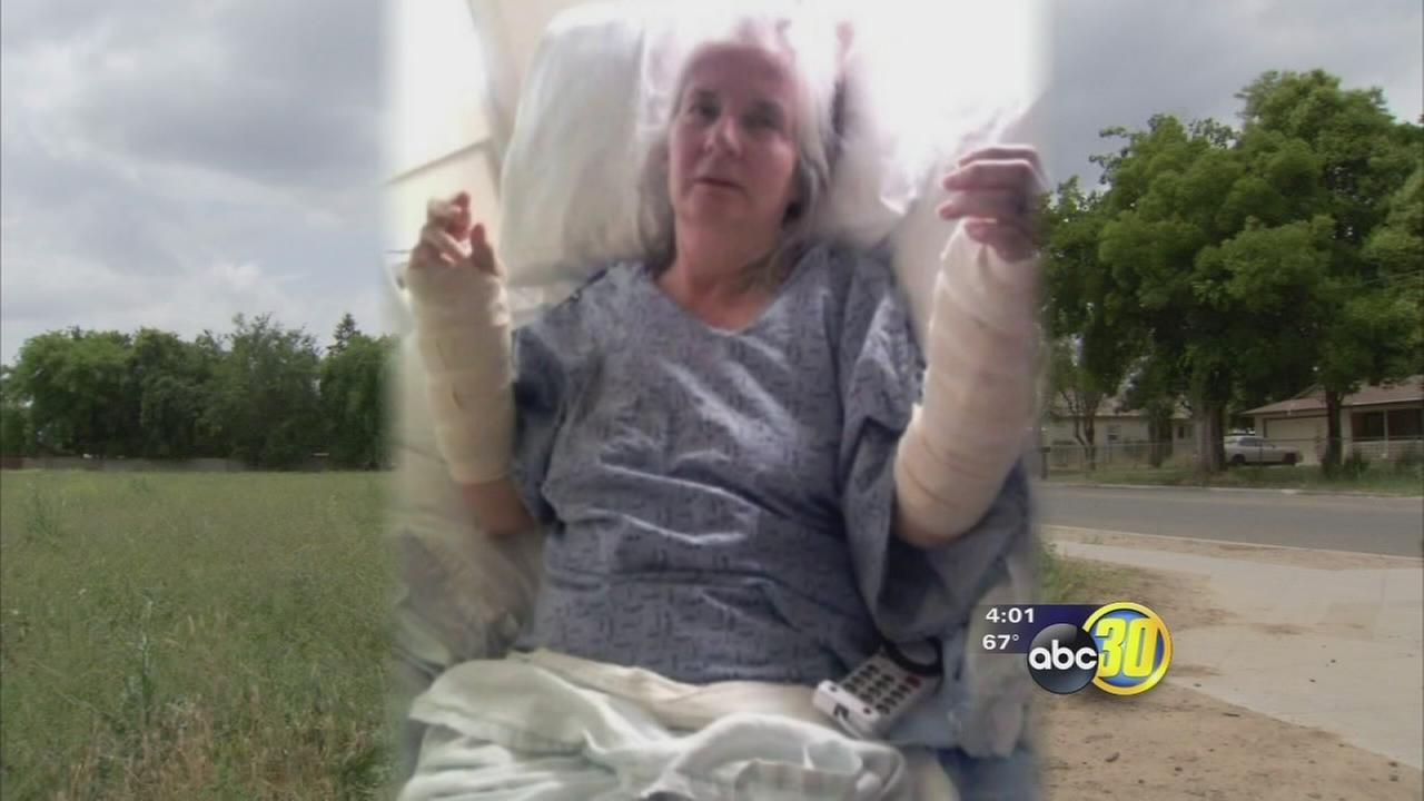 Fresno police looking for the owner of a dog that attacked a 67-year-old woman