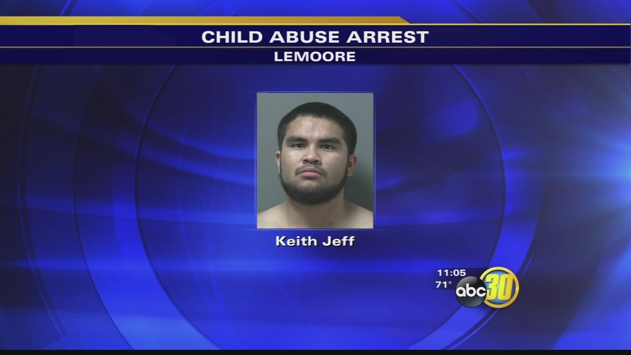 Lemoore man accused in injuring a 6-month-old child