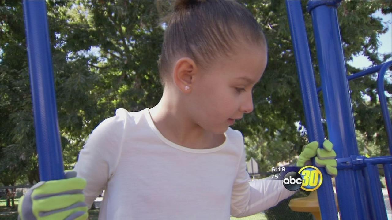 Parents of Clovis child with severe allergies hopes to bring awareness to other parents