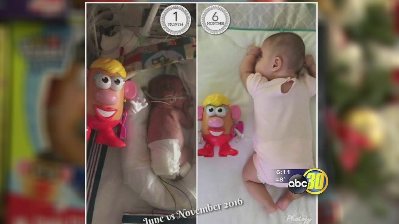 Mr. Potato Head being used at CRMC by parents of preemie-babies to track growth