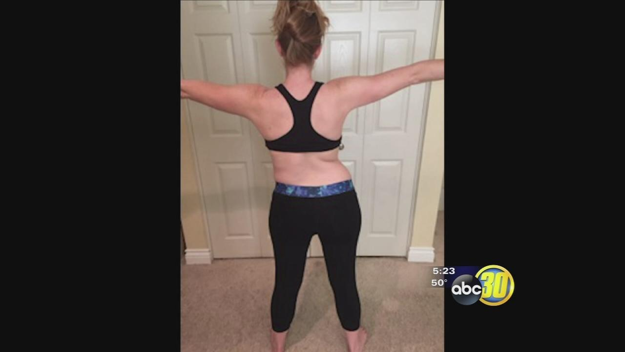 Pioneering Treatment for Scoliosis
