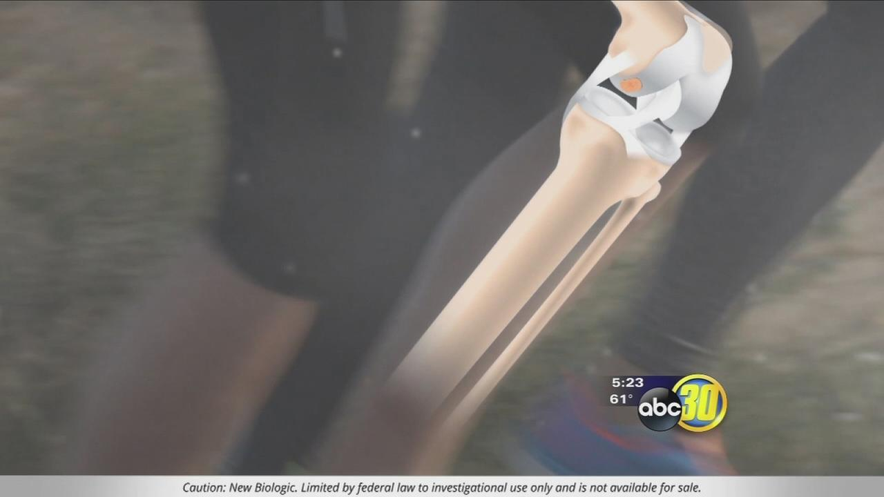 NeoCart: Pothole Surgery Fixes Knees