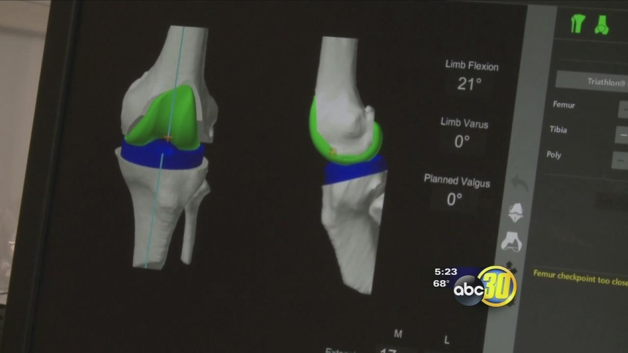 Mako Rio makes knee replacement easier