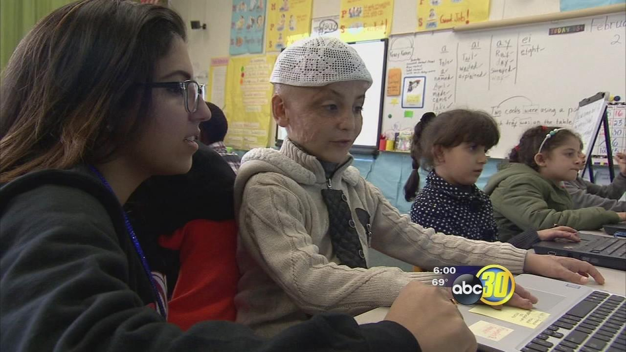 Injured Syrian boy now seeking new life and medical aid in Fresno