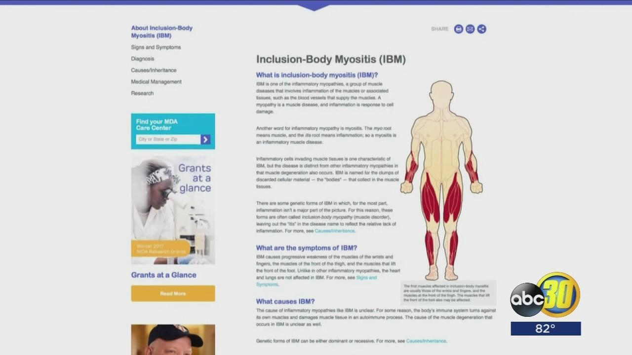 081917-kfsn-11pm-hw-myositis-vid