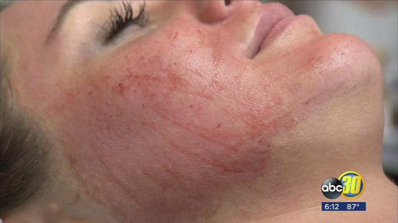 Spooky sounding new facial that is a hit with celebrities now available in the Valley