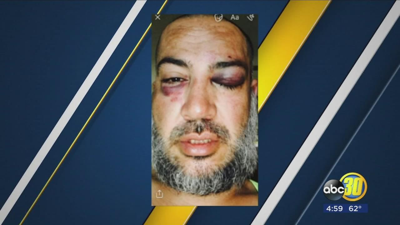 Strathmore man says TCSO deputies severely beat him, unlawfully detained him