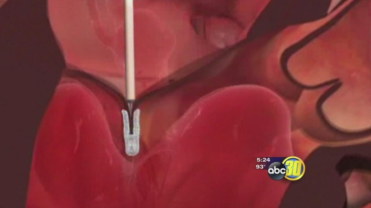 A new life-saving clip for the heart