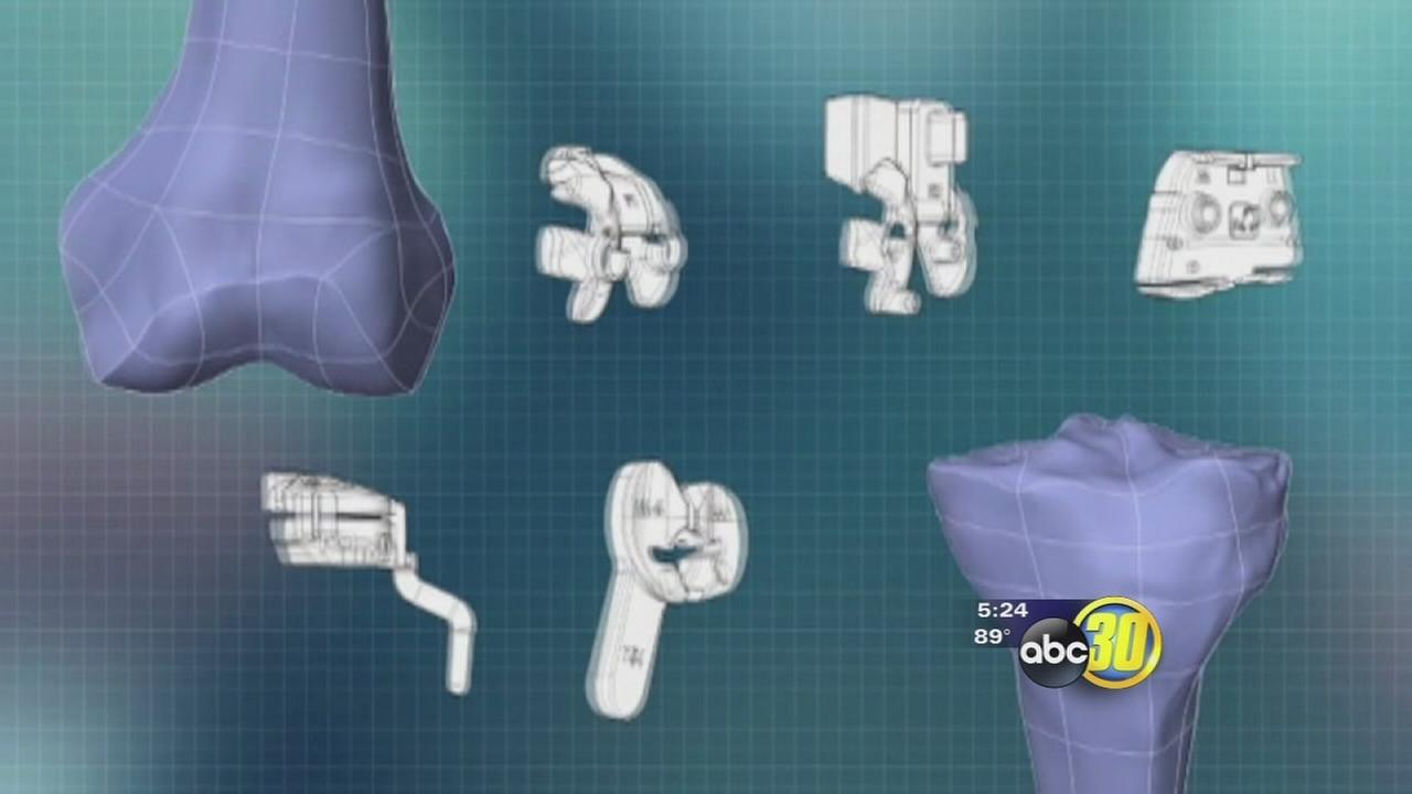3D printing creates custom knee replacements
