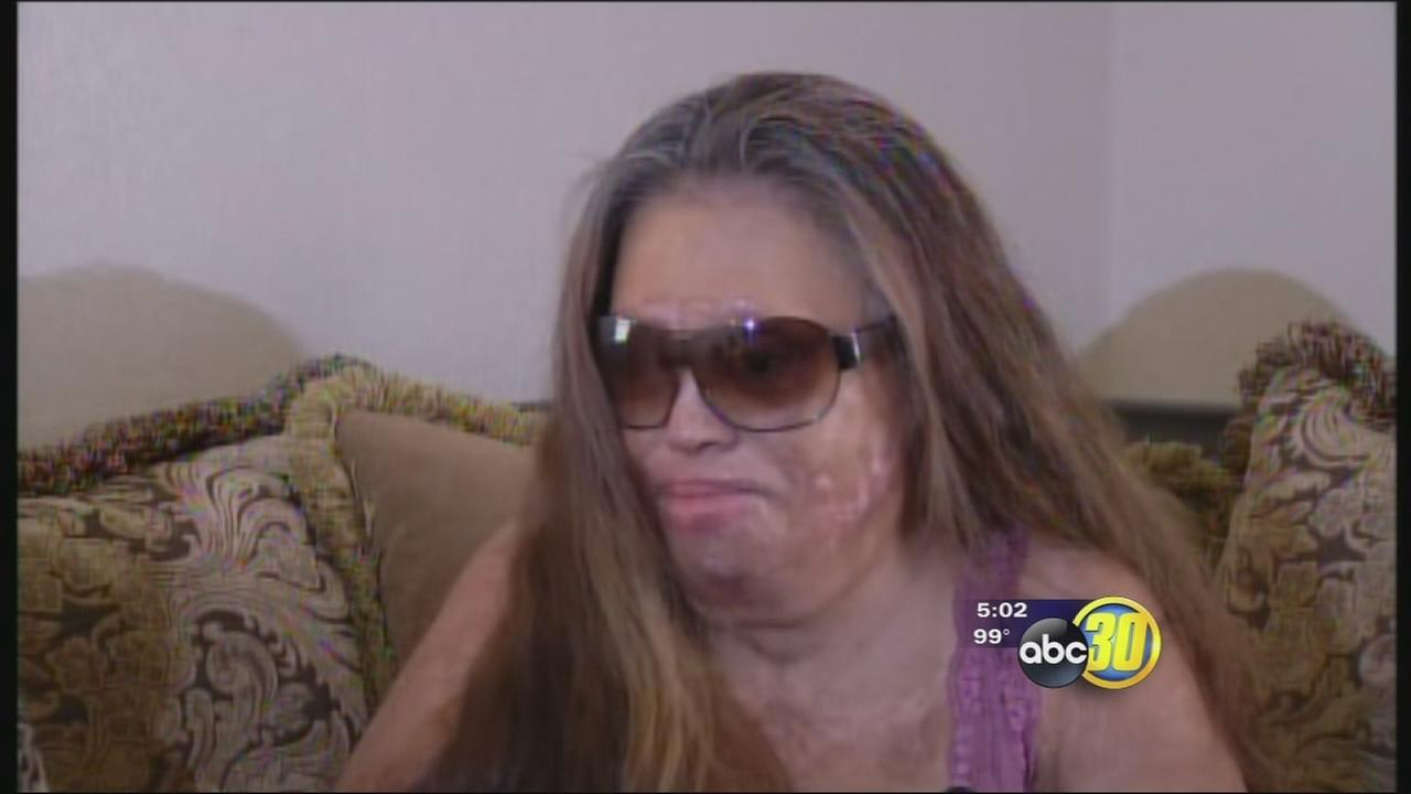Burned Lemoore woman seeks help to replace eye