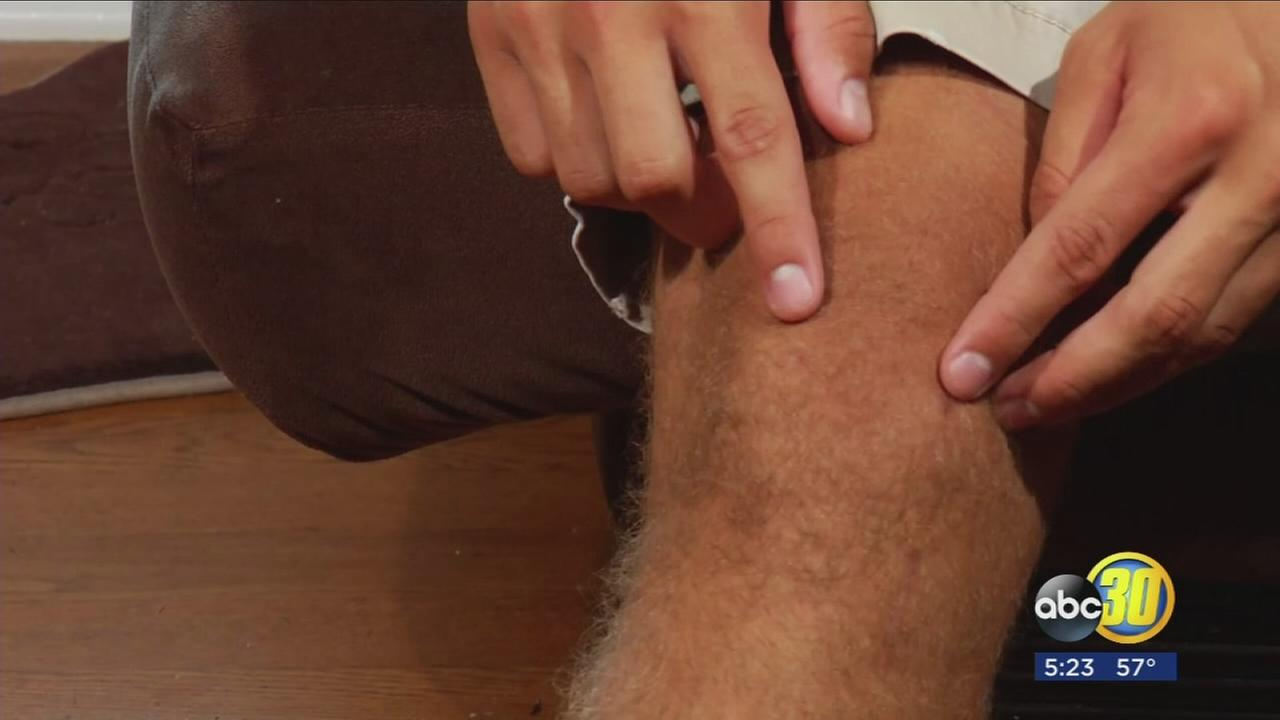 Meniscus: Repair or Replace?