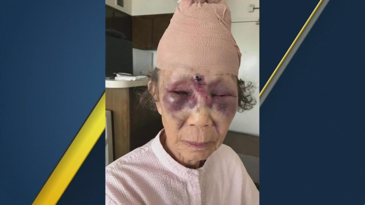 Man arrested on suspicion of violently beating grandmother in LAs Koreatown
