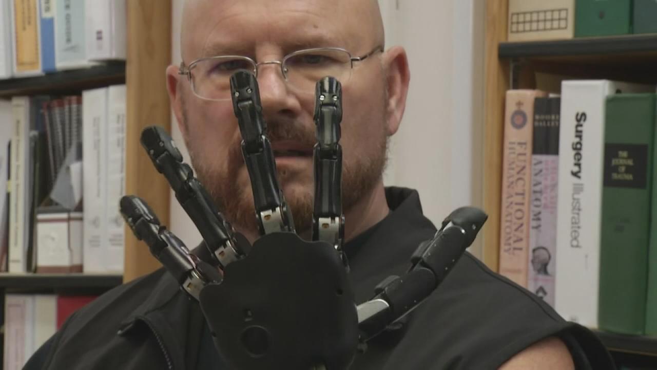 TMR Rewires Johnnys Bionic Arm