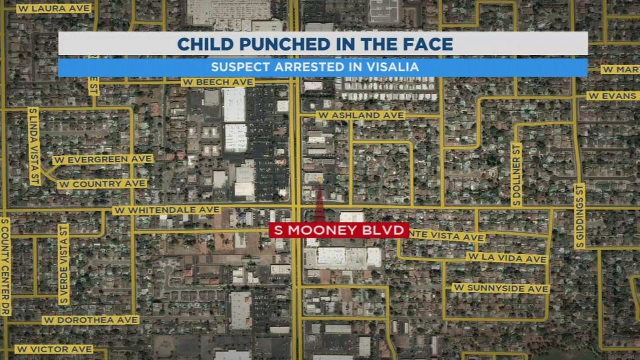 Visalia Police arrest 25-year-old man for hitting child in the face