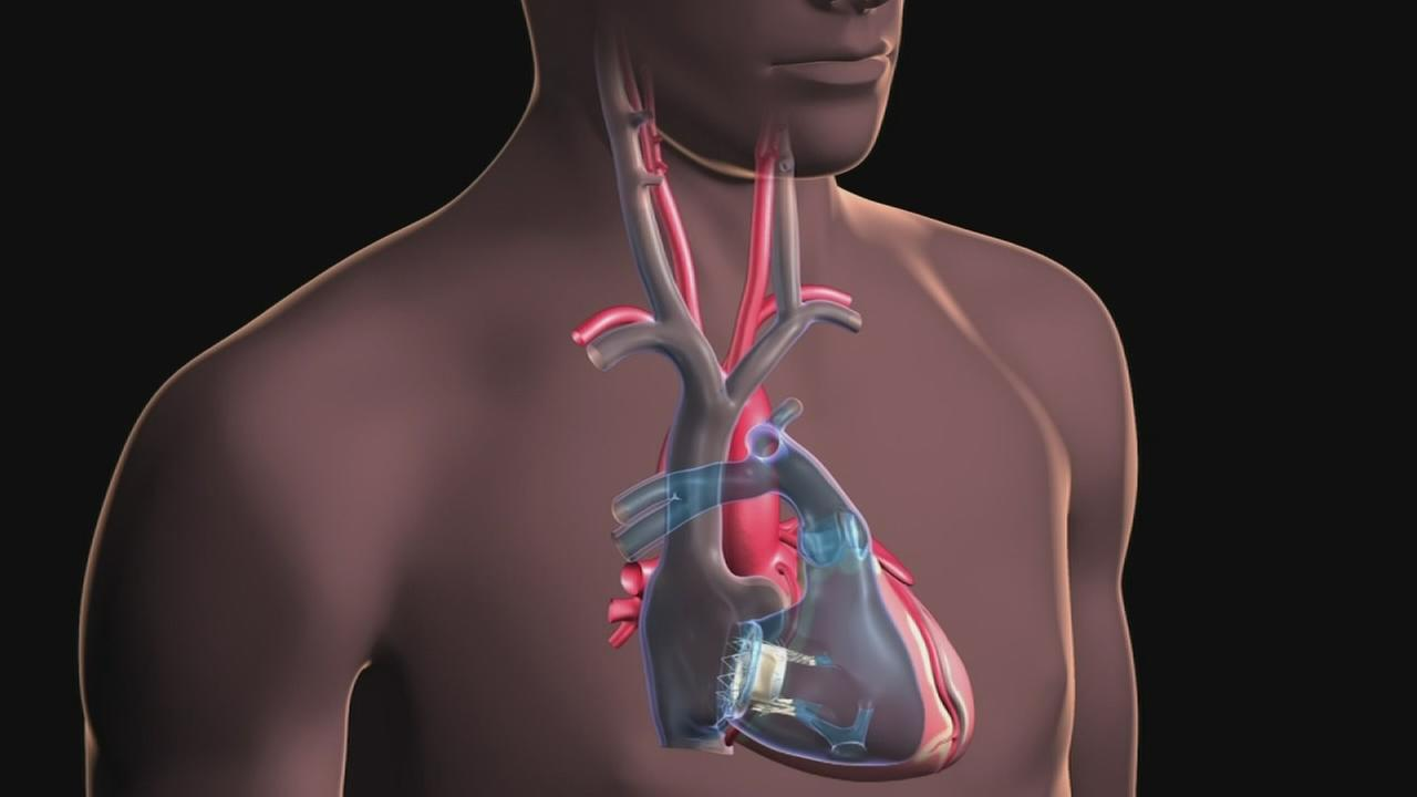 Out of Options: New Valve Saves Hearts