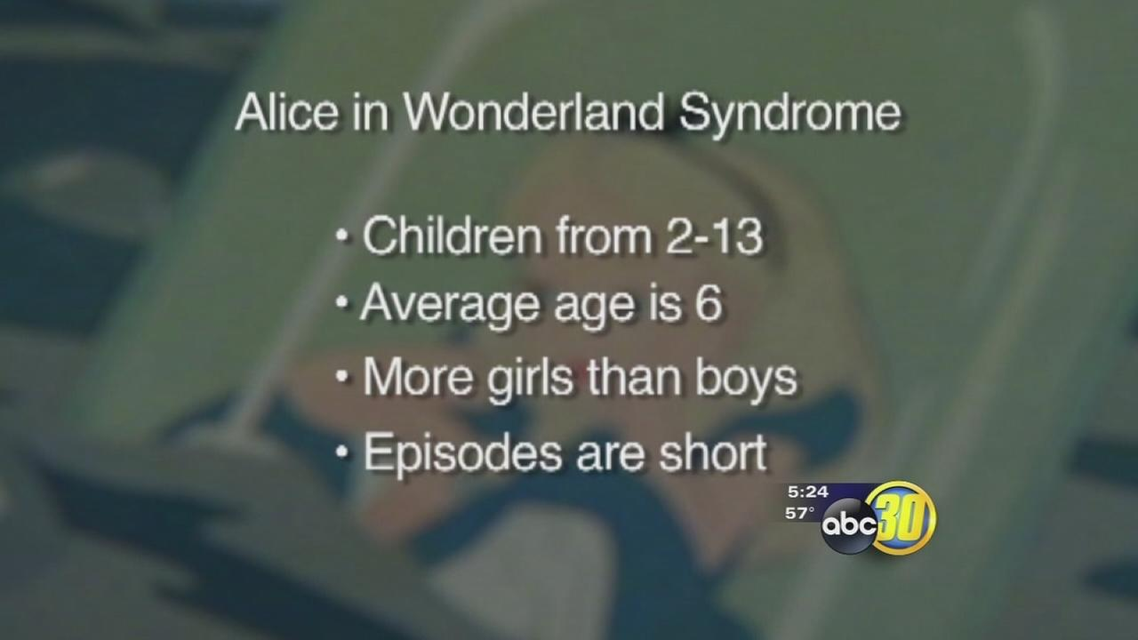 Alice in Wonderland Syndrome | abc30.com