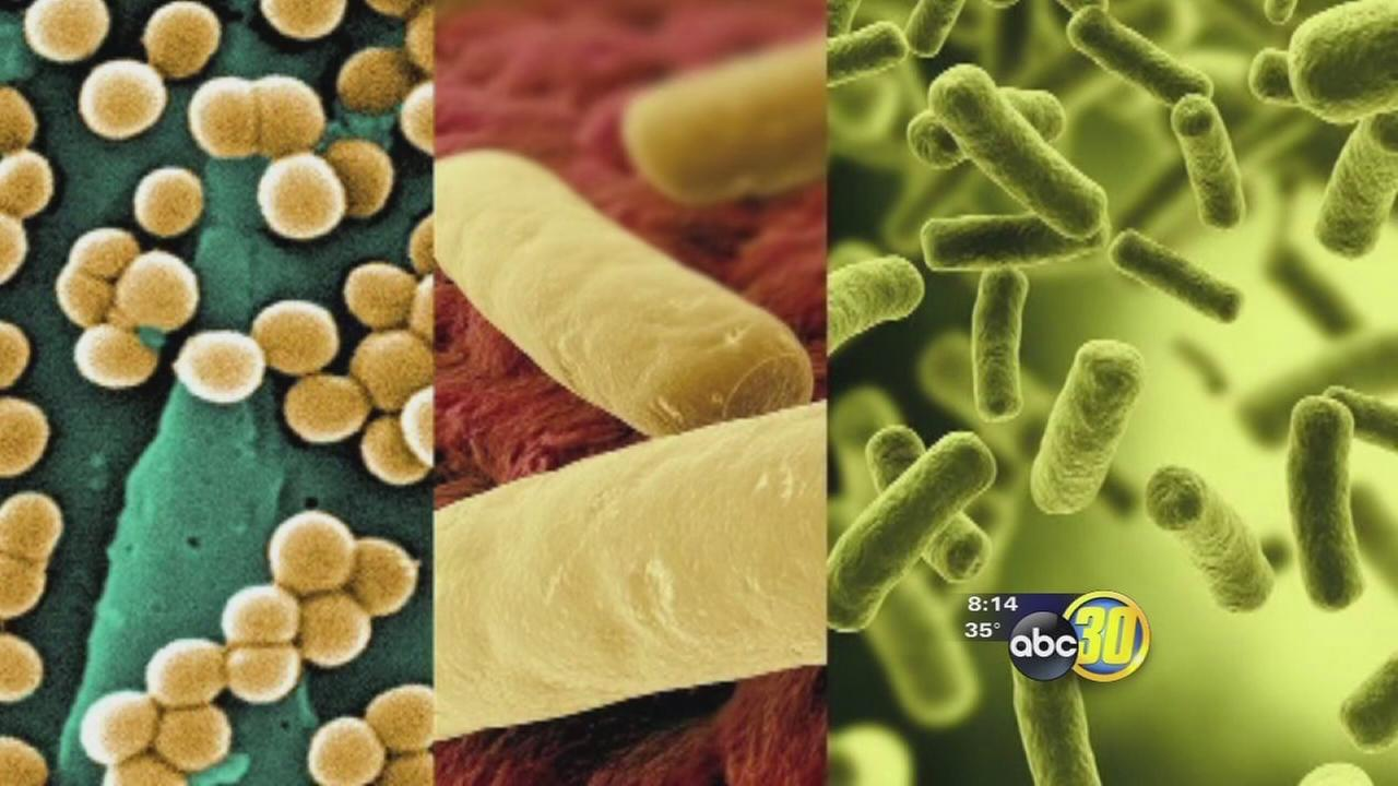Attacking superbugs in the hospital