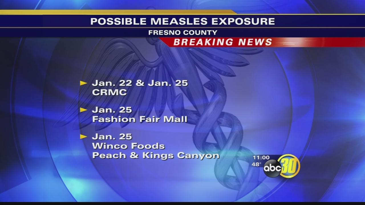 Health Department confirms Measles case in Fresno County